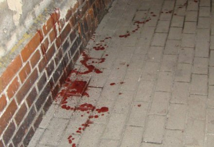 Kolejne brutalne pobicie w Pajęcznie